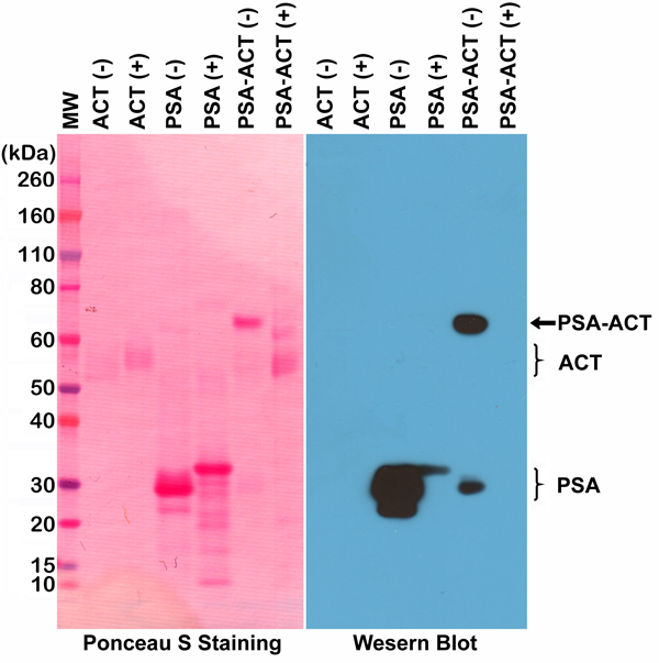 Figure 1. Western Blotting result<br>Western Blot of PSA (purified from human seminal fluid), ACT (alpha 1-antichymotrypsin, from human plasma), and PSA-ACT complex, under non-reduced (-) or reduced (+) conditions, using anti-PSA rabbit monoclonal antibody (Clone RM323) at a 1:2,500 dilution.