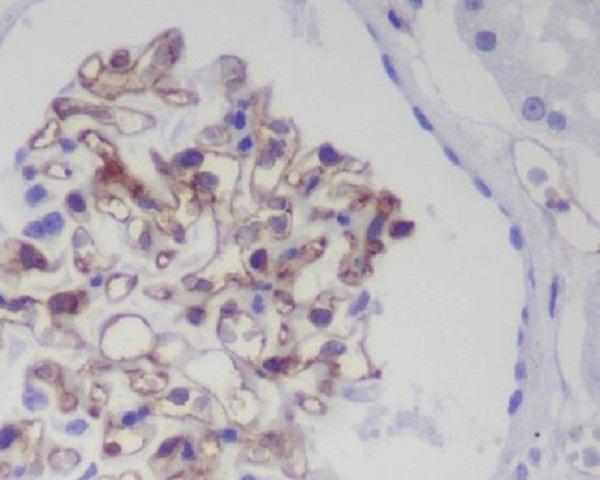Anti-CD31 Rabbit Monoclonal Antibody