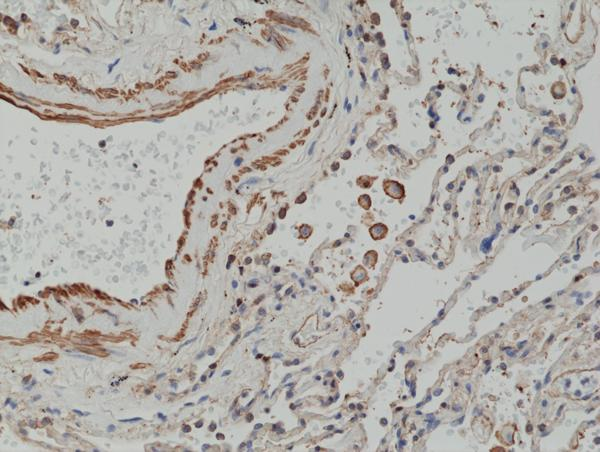 Figure 2. IHC result<br>Immunohistochemical staining of formalin fixed and paraffin embedded human lung cancer tissue section using anti-MMP-12 rabbit monoclonal antibody (Clone RM381) at a 1:2500 dilution.
