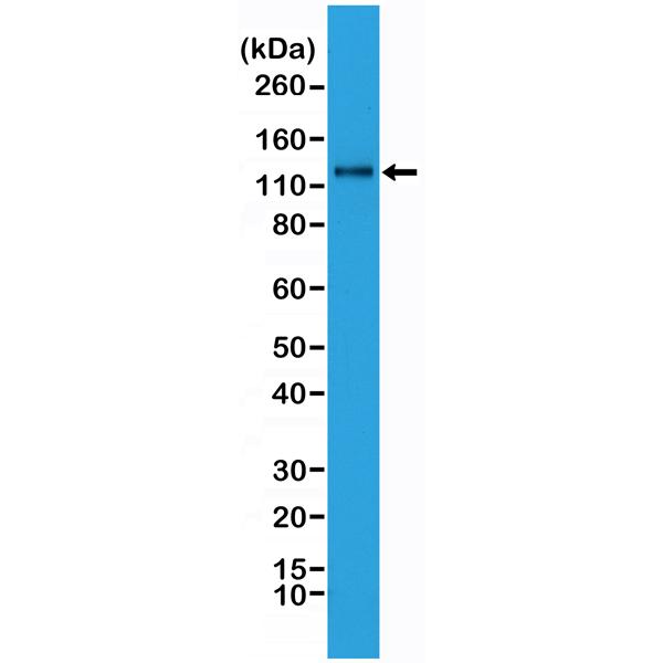 Figure 1. Western Blotting result<br>Western Blot analysis of HeLa whole cell lysates, using anti-N-cadherin rabbit monoclonal antibody (Clone RM259), showed N-cadherin expression in HeLa cells.