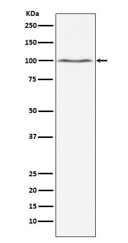 Figure 1. Western blot analysis of DNM2 using anti-DNM2 antibody (M01629).<br>Electrophoresis was performed on a 5-20% SDS-PAGE gel at 70V (Stacking gel) / 90V (Resolving gel) for 2-3 hours. The sample well of each lane was loaded with 50ug of sample under reducing conditions. <br>After Electrophoresis, proteins were transferred to a Nitrocellulose membrane at 150mA for 50-90 minutes. Blocked the membrane with 5% Non-fat Milk/ TBS for 1.5 hour at RT. The membrane was incubated with rabbit anti-DNM2 antigen affinity purified polyclonal antibody (Catalog # M01629) at 0.5 ug/mL overnight at 4°C, then washed with TBS-0.1%Tween 3 times with 5 minutes each and probed with a goat anti-Rabbit IgG IgG-HRP secondary antibody at a dilution of 1:10000 for 1.5 hour at RT. The signal is developed using an Enhanced Chemiluminescent detection (ECL) kit (Catalog # SA1022) with Tanon 5200 system. A specific band was detected for DNM2.