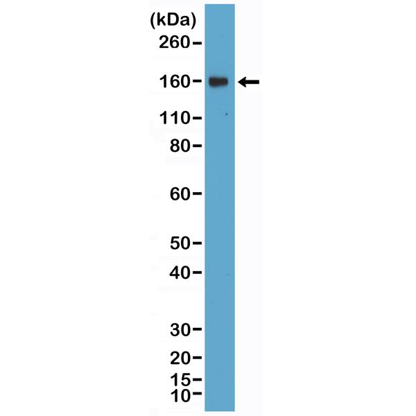 Figure 1. Western Blotting result<br>Western Blot of Daudi lysate using anti-CD21 rabbit monoclonal antibody (Clone RM372) at a 1:400 dilution.