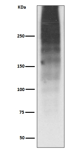 Western blot analysis of MUC16 expression in Human ovary cancer lysate (M01641). <br>Electrophoresis was performed on a 5-20% SDS-PAGE gel at 70V (Stacking gel) / 90V (Resolving gel) for 2-3 hours. The sample well of each lane was loaded with 50ug of sample under reducing conditions. <br> After Electrophoresis, proteins were transferred to a Nitrocellulose membrane at 150mA for 50-90 minutes. Blocked the membrane with 5% Non-fat Milk/ TBS for 1.5 hour at RT. The membrane was incubated with rabbit anti-MUC16 monoclonal antibody (Catalog # M01641)  overnight at 4°C, then washed with TBS-0.1%Tween 3 times with 5 minutes each and probed with a goat anti-rabbit IgG-HRP secondary antibody at a dilution of 1:10000 for 1.5 hour at RT. The signal is developed using an Enhanced Chemiluminescent detection (ECL) kit (Catalog # EK1002) with Tanon 5200 system. A specific band was detected for MUC16