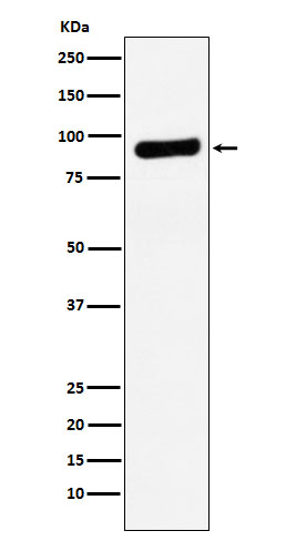 Figure 1. Western blot analysis of RRM1 using anti-RRM1 antibody (M01764).<br>Electrophoresis was performed on a 5-20% SDS-PAGE gel at 70V (Stacking gel) / 90V (Resolving gel) for 2-3 hours. The sample well of each lane was loaded with 50ug of sample under reducing conditions. <br>After Electrophoresis, proteins were transferred to a Nitrocellulose membrane at 150mA for 50-90 minutes. Blocked the membrane with 5% Non-fat Milk/ TBS for 1.5 hour at RT. The membrane was incubated with rabbit anti-RRM1 antigen affinity purified polyclonal antibody (Catalog # M01764) at 0.5 ug/mL overnight at 4°C, then washed with TBS-0.1%Tween 3 times with 5 minutes each and probed with a goat anti-Rabbit IgG IgG-HRP secondary antibody at a dilution of 1:10000 for 1.5 hour at RT. The signal is developed using an Enhanced Chemiluminescent detection (ECL) kit (Catalog # SA1022) with Tanon 5200 system. A specific band was detected for RRM1.
