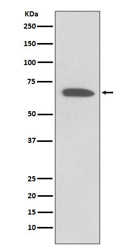 Western blot analysis of KCNA1 expression in Human fetal brain lysate (M01813). <br>Electrophoresis was performed on a 5-20% SDS-PAGE gel at 70V (Stacking gel) / 90V (Resolving gel) for 2-3 hours. The sample well of each lane was loaded with 50ug of sample under reducing conditions. <br> After Electrophoresis, proteins were transferred to a Nitrocellulose membrane at 150mA for 50-90 minutes. Blocked the membrane with 5% Non-fat Milk/ TBS for 1.5 hour at RT. The membrane was incubated with rabbit anti-KCNA1 monoclonal antibody (Catalog # M01813)  overnight at 4℃, then washed with TBS-0.1%Tween 3 times with 5 minutes each and probed with a goat anti-rabbit IgG-HRP secondary antibody at a dilution of 1:10000 for 1.5 hour at RT. The signal is developed using an Enhanced Chemiluminescent detection (ECL) kit (Catalog # EK1002) with Tanon 5200 system. A specific band was detected for KCNA1