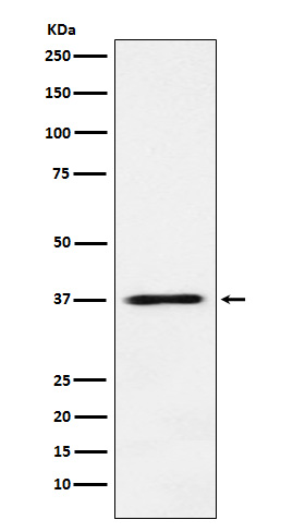 Figure 1. Western blot analysis of COPS5 using anti-COPS5 antibody (M01849).<br>Electrophoresis was performed on a 5-20% SDS-PAGE gel at 70V (Stacking gel) / 90V (Resolving gel) for 2-3 hours. The sample well of each lane was loaded with 50ug of sample under reducing conditions. <br>After Electrophoresis, proteins were transferred to a Nitrocellulose membrane at 150mA for 50-90 minutes. Blocked the membrane with 5% Non-fat Milk/ TBS for 1.5 hour at RT. The membrane was incubated with rabbit anti-COPS5 antigen affinity purified polyclonal antibody (Catalog # M01849) at 0.5 ug/mL overnight at 4°C, then washed with TBS-0.1%Tween 3 times with 5 minutes each and probed with a goat anti-Rabbit IgG IgG-HRP secondary antibody at a dilution of 1:10000 for 1.5 hour at RT. The signal is developed using an Enhanced Chemiluminescent detection (ECL) kit (Catalog # SA1022) with Tanon 5200 system. A specific band was detected for COPS5.