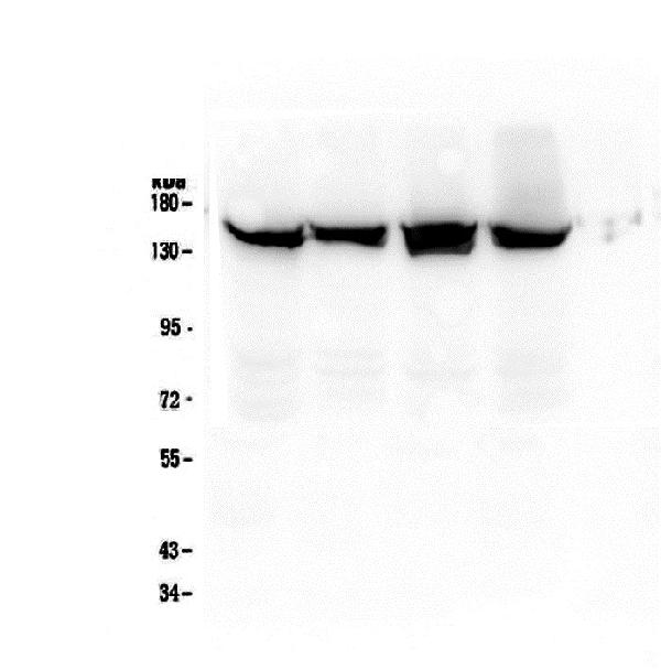 Figure 3. Western blot analysis of SMC3 using anti-SMC3 antibody (M01930-1).  <br>Electrophoresis was performed on a 8% SDS-PAGE gel at 70V (Stacking gel) / 90V (Resolving gel) for 2-3 hours. The sample well of each lane was loaded with 50ug of sample under reducing conditions.  <br>Lane 1: human Hela whole cell lysate,<br>Lane 2: human A549 whole cell lysate,<br>Lane 3: human MCF-7 whole cell lysate,<br>Lane 4: human MDA-MB-453 whole cell lysate.  <br>After Electrophoresis, proteins were transferred to a Nitrocellulose membrane at 150mA for 50-90 minutes. Blocked the membrane with 5% Non-fat Milk/ TBS for 1.5 hour at RT. The membrane was incubated with mouse anti-SMC3 antigen affinity purified monoclonal antibody (Catalog # M01930-1) at 0.5 μg/mL overnight at 4°C, then washed with TBS-0.1%Tween 3 times with 5 minutes each and probed with a goat anti-mouse IgG-HRP secondary antibody at a dilution of 1:10000 for 1.5 hour at RT. The signal is developed using an Enhanced Chemiluminescent detection (ECL) kit (Catalog # EK1001) with Tanon 5200 system.