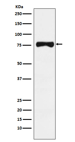 Figure 1. Western blot analysis of TYRP1 using anti-TYRP1 antibody (M01959-1).<br>Electrophoresis was performed on a 5-20% SDS-PAGE gel at 70V (Stacking gel) / 90V (Resolving gel) for 2-3 hours. The sample well of each lane was loaded with 50ug of sample under reducing conditions. <br>After Electrophoresis, proteins were transferred to a Nitrocellulose membrane at 150mA for 50-90 minutes. Blocked the membrane with 5% Non-fat Milk/ TBS for 1.5 hour at RT. The membrane was incubated with rabbit anti-TYRP1 antigen affinity purified polyclonal antibody (Catalog # M01959-1) at 0.5 ug/mL overnight at 4°C, then washed with TBS-0.1%Tween 3 times with 5 minutes each and probed with a goat anti-Rabbit IgG IgG-HRP secondary antibody at a dilution of 1:10000 for 1.5 hour at RT. The signal is developed using an Enhanced Chemiluminescent detection (ECL) kit (Catalog # SA1022) with Tanon 5200 system. A specific band was detected for TYRP1.