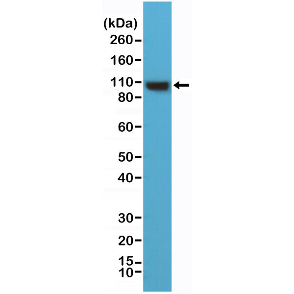 Figure 1. Western Blotting result<br>Western Blot of HeLa cells lysates using anti-alpha-Actinin-4 rabbit monoclonal antibody (clone RM287) at a 1:1000 dilution.