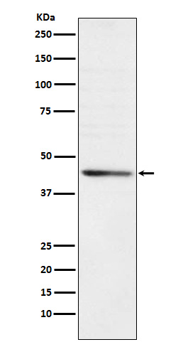 Figure 1. Western blot analysis of RRM2 using anti-RRM2 antibody (M01978).<br>Electrophoresis was performed on a 5-20% SDS-PAGE gel at 70V (Stacking gel) / 90V (Resolving gel) for 2-3 hours. The sample well of each lane was loaded with 50ug of sample under reducing conditions. <br>After Electrophoresis, proteins were transferred to a Nitrocellulose membrane at 150mA for 50-90 minutes. Blocked the membrane with 5% Non-fat Milk/ TBS for 1.5 hour at RT. The membrane was incubated with rabbit anti-RRM2 antigen affinity purified polyclonal antibody (Catalog # M01978) at 0.5 ug/mL overnight at 4°C, then washed with TBS-0.1%Tween 3 times with 5 minutes each and probed with a goat anti-Rabbit IgG IgG-HRP secondary antibody at a dilution of 1:10000 for 1.5 hour at RT. The signal is developed using an Enhanced Chemiluminescent detection (ECL) kit (Catalog # SA1022) with Tanon 5200 system. A specific band was detected for RRM2.
