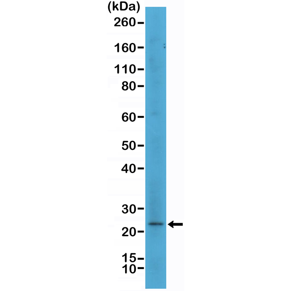 Figure 1. Western Blotting result<br>Western Blot of SK-MEL-2 cell lysate using anti-MART1 rabbit monoclonal antibody (Clone RM333) at a 1:500 dilution.