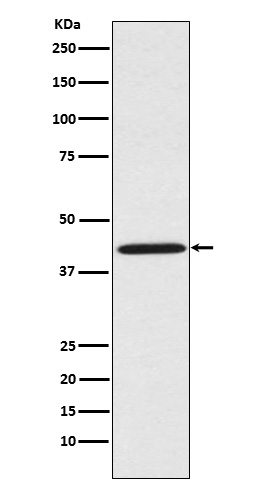 Figure 1. Western blot analysis of SPRY2 using anti-SPRY2 antibody (M02089) in HeLa cell lysate.<br>Electrophoresis was performed on a 5-20% SDS-PAGE gel at 70V (Stacking gel) / 90V (Resolving gel) for 2-3 hours. The sample well of each lane was loaded with 50ug of sample under reducing conditions. <br>After Electrophoresis, proteins were transferred to a Nitrocellulose membrane at 150mA for 50-90 minutes. Blocked the membrane with 5% Non-fat Milk/ TBS for 1.5 hour at RT. The membrane was incubated with rabbit anti-SPRY2 antigen affinity purified polyclonal antibody (Catalog # M02089) at 0.5 ug/mL overnight at 4°C, then washed with TBS-0.1%Tween 3 times with 5 minutes each and probed with a goat anti-Rabbit IgG IgG-HRP secondary antibody at a dilution of 1:10000 for 1.5 hour at RT. The signal is developed using an Enhanced Chemiluminescent detection (ECL) kit (Catalog # SA1022) with Tanon 5200 system. A specific band was detected for SPRY2.