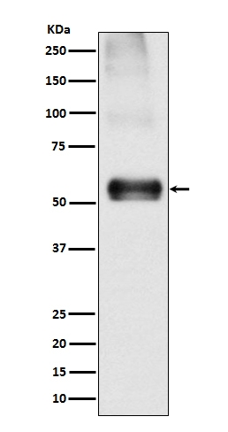 Western blot analysis of EAAT1 expression in Mouse brain lysate (M02133). <br>Electrophoresis was performed on a 5-20% SDS-PAGE gel at 70V (Stacking gel) / 90V (Resolving gel) for 2-3 hours. The sample well of each lane was loaded with 50ug of sample under reducing conditions. <br> After Electrophoresis, proteins were transferred to a Nitrocellulose membrane at 150mA for 50-90 minutes. Blocked the membrane with 5% Non-fat Milk/ TBS for 1.5 hour at RT. The membrane was incubated with rabbit anti-SLC1A3 monoclonal antibody (Catalog # M02133)  overnight at 4°C, then washed with TBS-0.1%Tween 3 times with 5 minutes each and probed with a goat anti-rabbit IgG-HRP secondary antibody at a dilution of 1:10000 for 1.5 hour at RT. The signal is developed using an Enhanced Chemiluminescent detection (ECL) kit (Catalog # EK1002) with Tanon 5200 system. A specific band was detected for SLC1A3