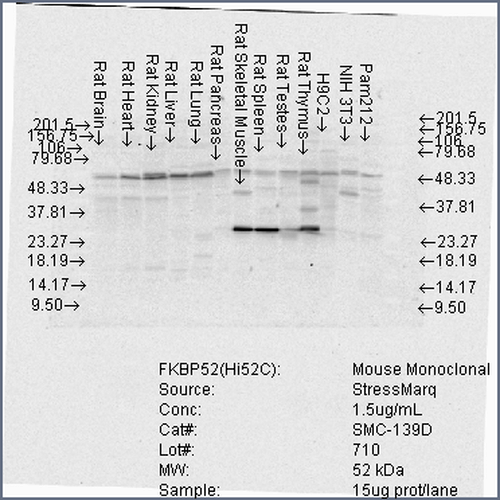 Figure 3. Western blot analysis of FKBP4 using anti-FKBP4 antibody (M02165-1).<br>Electrophoresis was performed on a 5-20% SDS-PAGE gel at 70V (Stacking gel) / 90V (Resolving gel) for 2-3 hours. The sample well of each lane was loaded with 50ug of sample under reducing conditions. <br>After Electrophoresis, proteins were transferred to a Nitrocellulose membrane at 150mA for 50-90 minutes. Blocked the membrane with 5% Non-fat Milk/ TBS for 1.5 hour at RT. The membrane was incubated with rabbit anti-FKBP4 antigen affinity purified polyclonal antibody (Catalog # M02165-1) at 0.5 ug/mL overnight at 4°C, then washed with TBS-0.1%Tween 3 times with 5 minutes each and probed with a goat anti-Mouse IgG-HRP secondary antibody at a dilution of 1:10000 for 1.5 hour at RT. The signal is developed using an Enhanced Chemiluminescent detection (ECL) kit (Catalog # SA1021) with Tanon 5200 system. A specific band was detected for FKBP4.
