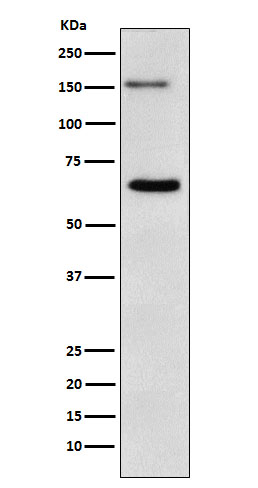 Figure 1. Western blot analysis of NUP153 using anti-NUP153 antibody (M02183).<br>Electrophoresis was performed on a 5-20% SDS-PAGE gel at 70V (Stacking gel) / 90V (Resolving gel) for 2-3 hours. The sample well of each lane was loaded with 50ug of sample under reducing conditions. <br>After Electrophoresis, proteins were transferred to a Nitrocellulose membrane at 150mA for 50-90 minutes. Blocked the membrane with 5% Non-fat Milk/ TBS for 1.5 hour at RT. The membrane was incubated with rabbit anti-NUP153 antigen affinity purified polyclonal antibody (Catalog # M02183) at 0.5 ug/mL overnight at 4°C, then washed with TBS-0.1%Tween 3 times with 5 minutes each and probed with a goat anti-Rabbit IgG IgG-HRP secondary antibody at a dilution of 1:10000 for 1.5 hour at RT. The signal is developed using an Enhanced Chemiluminescent detection (ECL) kit (Catalog # SA1022) with Tanon 5200 system. A specific band was detected for NUP153.