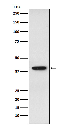 Figure 1. Western blot analysis of SET using anti-SET antibody (M02211).<br>Electrophoresis was performed on a 5-20% SDS-PAGE gel at 70V (Stacking gel) / 90V (Resolving gel) for 2-3 hours. The sample well of each lane was loaded with 50ug of sample under reducing conditions. <br>After Electrophoresis, proteins were transferred to a Nitrocellulose membrane at 150mA for 50-90 minutes. Blocked the membrane with 5% Non-fat Milk/ TBS for 1.5 hour at RT. The membrane was incubated with rabbit anti-SET antigen affinity purified polyclonal antibody (Catalog # M02211) at 0.5 ug/mL overnight at 4°C, then washed with TBS-0.1%Tween 3 times with 5 minutes each and probed with a goat anti-Rabbit IgG IgG-HRP secondary antibody at a dilution of 1:10000 for 1.5 hour at RT. The signal is developed using an Enhanced Chemiluminescent detection (ECL) kit (Catalog # SA1022) with Tanon 5200 system. A specific band was detected for SET.