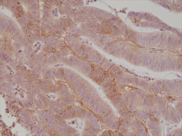 Figure 2. IHC result<br>Immunohistochemical staining of formalin fixed and paraffin embedded human colon cancer tissue section using anti-CD276 (B7-H3) rabbit monoclonal antibody (Clone RM335) at a 1:1000 dilution.