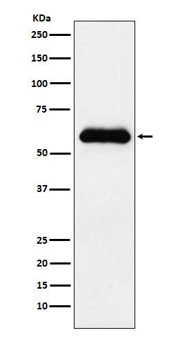 Figure 1. Western blot analysis of SERPINA3 using anti-SERPINA3 antibody (M02312) in human plasma lysate.