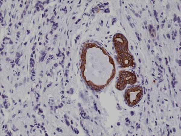 Figure 2. IHC result<br>Immunohistochemical staining of formalin fixed and paraffin embedded human breast cancer tissue sections using Anti-CK7 Rabbit Monoclonal Antibody (Clone RM284) at a 1:1000 dilution.
