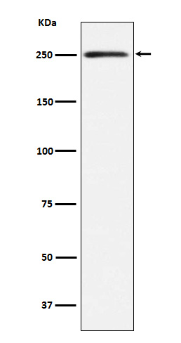 Figure 1. Western blot analysis of MYH11 using anti-MYH11 antibody (M02422-2).<br>Electrophoresis was performed on a 5-20% SDS-PAGE gel at 70V (Stacking gel) / 90V (Resolving gel) for 2-3 hours. The sample well of each lane was loaded with 50ug of sample under reducing conditions. <br>After Electrophoresis, proteins were transferred to a Nitrocellulose membrane at 150mA for 50-90 minutes. Blocked the membrane with 5% Non-fat Milk/ TBS for 1.5 hour at RT. The membrane was incubated with rabbit anti-MYH11 antigen affinity purified polyclonal antibody (Catalog # M02422-2) at 0.5 ug/mL overnight at 4°C, then washed with TBS-0.1%Tween 3 times with 5 minutes each and probed with a goat anti-Rabbit IgG IgG-HRP secondary antibody at a dilution of 1:10000 for 1.5 hour at RT. The signal is developed using an Enhanced Chemiluminescent detection (ECL) kit (Catalog # SA1022) with Tanon 5200 system. A specific band was detected for MYH11.