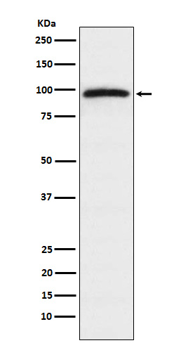 Figure 1. Western blot analysis of RAPGEF3 using anti-RAPGEF3 antibody (M02483)  in HeLa cell lysate.<br>Electrophoresis was performed on a 5-20% SDS-PAGE gel at 70V (Stacking gel) / 90V (Resolving gel) for 2-3 hours. The sample well of each lane was loaded with 50ug of sample under reducing conditions. <br>After Electrophoresis, proteins were transferred to a Nitrocellulose membrane at 150mA for 50-90 minutes. Blocked the membrane with 5% Non-fat Milk/ TBS for 1.5 hour at RT. The membrane was incubated with rabbit anti-RAPGEF3 antigen affinity purified polyclonal antibody (Catalog # M02483) at 0.5 ug/mL overnight at 4°C, then washed with TBS-0.1%Tween 3 times with 5 minutes each and probed with a goat anti-Rabbit IgG IgG-HRP secondary antibody at a dilution of 1:10000 for 1.5 hour at RT. The signal is developed using an Enhanced Chemiluminescent detection (ECL) kit (Catalog # SA1022) with Tanon 5200 system. A specific band was detected for RAPGEF3.