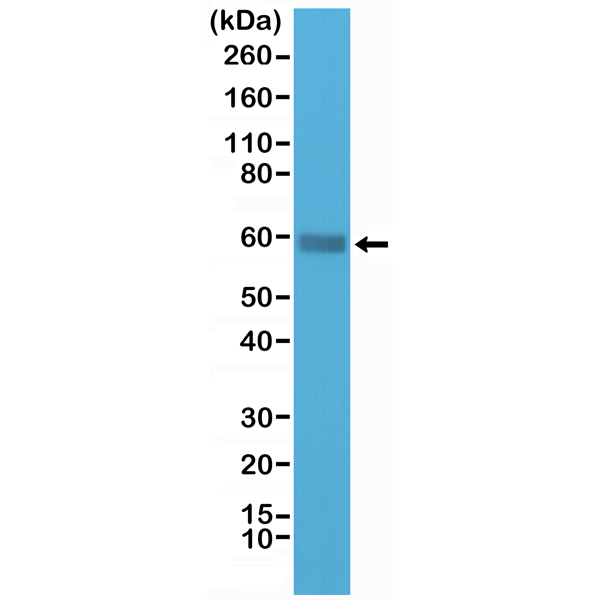 Figure 1. Western Blotting result<br>Western Blot of Jurkat cells lysate using anti-CD5 rabbit monoclonal antibody (Clone RM314) at a 1:1000 dilution.