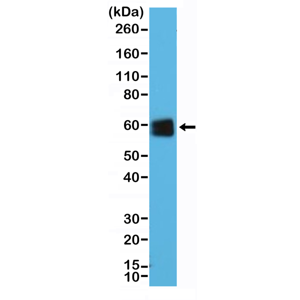 Figure 1. Western Blotting result<br>Western Blot of Jurkat cells lysate using anti-CD5 rabbit monoclonal antibody (Clone RM354) at a 1:25000 dilution.
