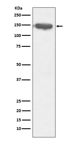 Western blot analysis of CD13 expression in THP-1 cell lysate (M02591). <br>Electrophoresis was performed on a 5-20% SDS-PAGE gel at 70V (Stacking gel) / 90V (Resolving gel) for 2-3 hours. The sample well of each lane was loaded with 50ug of sample under reducing conditions. <br> After Electrophoresis, proteins were transferred to a Nitrocellulose membrane at 150mA for 50-90 minutes. Blocked the membrane with 5% Non-fat Milk/ TBS for 1.5 hour at RT. The membrane was incubated with rabbit anti-ANPEP monoclonal antibody (Catalog # M02591)  overnight at 4°C, then washed with TBS-0.1%Tween 3 times with 5 minutes each and probed with a goat anti-rabbit IgG-HRP secondary antibody at a dilution of 1:10000 for 1.5 hour at RT. The signal is developed using an Enhanced Chemiluminescent detection (ECL) kit (Catalog # EK1002) with Tanon 5200 system. A specific band was detected for ANPEP