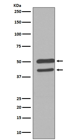 Western blot analysis of JNK1/2/3 Antibody expression in HeLa cell lysate (M02608-1). <br>Electrophoresis was performed on a 5-20% SDS-PAGE gel at 70V (Stacking gel) / 90V (Resolving gel) for 2-3 hours. The sample well of each lane was loaded with 50ug of sample under reducing conditions. <br> After Electrophoresis, proteins were transferred to a Nitrocellulose membrane at 150mA for 50-90 minutes. Blocked the membrane with 5% Non-fat Milk/ TBS for 1.5 hour at RT. The membrane was incubated with rabbit anti-MAPK8 monoclonal antibody (Catalog # M02608-1)  overnight at 4℃, then washed with TBS-0.1%Tween 3 times with 5 minutes each and probed with a goat anti-rabbit IgG-HRP secondary antibody at a dilution of 1:10000 for 1.5 hour at RT. The signal is developed using an Enhanced Chemiluminescent detection (ECL) kit (Catalog # EK1002) with Tanon 5200 system. A specific band was detected for MAPK8