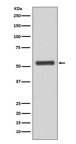 Western blot analysis of JNK2 expression in HeLa cell lysate (M02706). <br>Electrophoresis was performed on a 5-20% SDS-PAGE gel at 70V (Stacking gel) / 90V (Resolving gel) for 2-3 hours. The sample well of each lane was loaded with 50ug of sample under reducing conditions. <br> After Electrophoresis, proteins were transferred to a Nitrocellulose membrane at 150mA for 50-90 minutes. Blocked the membrane with 5% Non-fat Milk/ TBS for 1.5 hour at RT. The membrane was incubated with rabbit anti-MAPK9 monoclonal antibody (Catalog # M02706)  overnight at 4℃, then washed with TBS-0.1%Tween 3 times with 5 minutes each and probed with a goat anti-rabbit IgG-HRP secondary antibody at a dilution of 1:10000 for 1.5 hour at RT. The signal is developed using an Enhanced Chemiluminescent detection (ECL) kit (Catalog # EK1002) with Tanon 5200 system. A specific band was detected for MAPK9