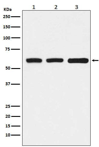 Figure 1. Western blot analysis of ELP3 using anti-ELP3 antibody (M02833).<br>Electrophoresis was performed on a 5-20% SDS-PAGE gel at 70V (Stacking gel) / 90V (Resolving gel) for 2-3 hours. The sample well of each lane was loaded with 50ug of sample under reducing conditions. <br>After Electrophoresis, proteins were transferred to a Nitrocellulose membrane at 150mA for 50-90 minutes. Blocked the membrane with 5% Non-fat Milk/ TBS for 1.5 hour at RT. The membrane was incubated with rabbit anti-ELP3 antigen affinity purified polyclonal antibody (Catalog # M02833) at 0.5 ug/mL overnight at 4°C, then washed with TBS-0.1%Tween 3 times with 5 minutes each and probed with a goat anti-Rabbit IgG IgG-HRP secondary antibody at a dilution of 1:10000 for 1.5 hour at RT. The signal is developed using an Enhanced Chemiluminescent detection (ECL) kit (Catalog # SA1022) with Tanon 5200 system. A specific band was detected for ELP3.