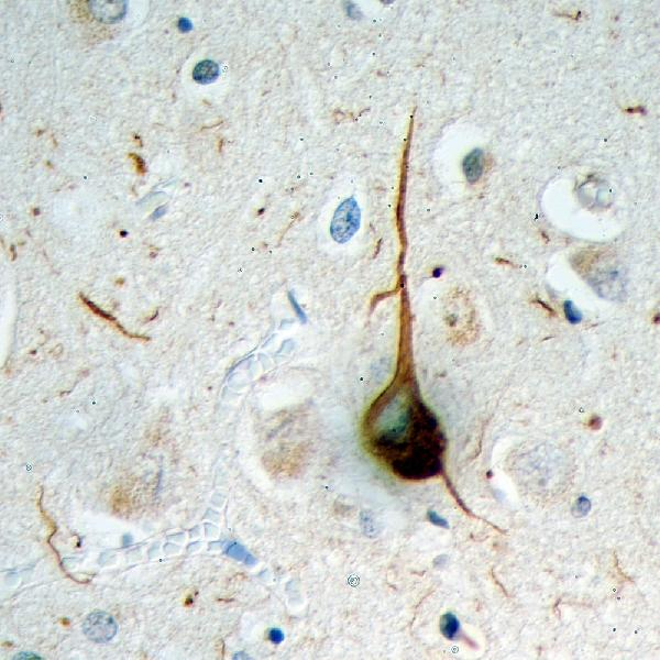 Formalin fixed paraffin embedded section of cerebral cortex of an Alzheimer patient processed with M02848-4 using HRP/DAB, giving a brown signal. Also stained with haemotoxylin in blue. A typical flame shaped tangle is seen in a pyramidal neuron in the center and is surrounded by some dystrophic neurites, also strongly ubiquitin positive. Both are commonly seen in cortical and hippocampal Alzheimer brain sections and are typical for this disease, but are rare or absent in healthy brain.