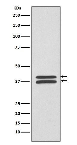 Western blot analysis of MEK3/MEK6 expression in HeLa cell lysate (M02916). <br>Electrophoresis was performed on a 5-20% SDS-PAGE gel at 70V (Stacking gel) / 90V (Resolving gel) for 2-3 hours. The sample well of each lane was loaded with 50ug of sample under reducing conditions. <br> After Electrophoresis, proteins were transferred to a Nitrocellulose membrane at 150mA for 50-90 minutes. Blocked the membrane with 5% Non-fat Milk/ TBS for 1.5 hour at RT. The membrane was incubated with rabbit anti-MAP2K3 monoclonal antibody (Catalog # M02916)  overnight at 4℃, then washed with TBS-0.1%Tween 3 times with 5 minutes each and probed with a goat anti-rabbit IgG-HRP secondary antibody at a dilution of 1:10000 for 1.5 hour at RT. The signal is developed using an Enhanced Chemiluminescent detection (ECL) kit (Catalog # EK1002) with Tanon 5200 system. A specific band was detected for MAP2K3