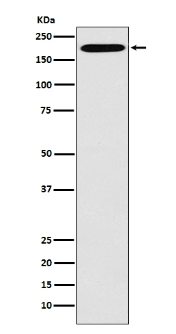 Western blot analysis of Clathrin heavy chain expression in Hela cell lysate (M03134). <br>Electrophoresis was performed on a 5-20% SDS-PAGE gel at 70V (Stacking gel) / 90V (Resolving gel) for 2-3 hours. The sample well of each lane was loaded with 50ug of sample under reducing conditions. <br> After Electrophoresis, proteins were transferred to a Nitrocellulose membrane at 150mA for 50-90 minutes. Blocked the membrane with 5% Non-fat Milk/ TBS for 1.5 hour at RT. The membrane was incubated with rabbit anti-CLTC monoclonal antibody (Catalog # M03134)  overnight at 4℃, then washed with TBS-0.1%Tween 3 times with 5 minutes each and probed with a goat anti-rabbit IgG-HRP secondary antibody at a dilution of 1:10000 for 1.5 hour at RT. The signal is developed using an Enhanced Chemiluminescent detection (ECL) kit (Catalog # EK1002) with Tanon 5200 system. A specific band was detected for CLTC