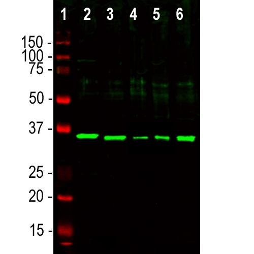 Western blot analysis of different cell lysates using chicken pAb to fibrillarin M03178-5, dilution 1:5,000, in green: [1] protein standard (red), [2] NIH-3T3, [3] HEK293, [4] HeLa, [5] SH-SY5Y, and [6] C6 cells. The single strong band at ~35kDa correspond to the fibrillarin protein.