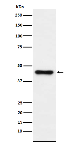 Figure 1. Western blot analysis of ABHD5 using anti-ABHD5 antibody (M03209).<br>Electrophoresis was performed on a 5-20% SDS-PAGE gel at 70V (Stacking gel) / 90V (Resolving gel) for 2-3 hours. The sample well of each lane was loaded with 50ug of sample under reducing conditions. <br>After Electrophoresis, proteins were transferred to a Nitrocellulose membrane at 150mA for 50-90 minutes. Blocked the membrane with 5% Non-fat Milk/ TBS for 1.5 hour at RT. The membrane was incubated with rabbit anti-ABHD5 antigen affinity purified polyclonal antibody (Catalog # M03209) at 0.5 ug/mL overnight at 4°C, then washed with TBS-0.1%Tween 3 times with 5 minutes each and probed with a goat anti-Rabbit IgG IgG-HRP secondary antibody at a dilution of 1:10000 for 1.5 hour at RT. The signal is developed using an Enhanced Chemiluminescent detection (ECL) kit (Catalog # SA1022) with Tanon 5200 system. A specific band was detected for ABHD5.