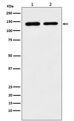 Figure 1. Western blot analysis of STAG2 using anti-STAG2 antibody (M03624).<br>Electrophoresis was performed on a 5-20% SDS-PAGE gel at 70V (Stacking gel) / 90V (Resolving gel) for 2-3 hours. The sample well of each lane was loaded with 50ug of sample under reducing conditions. <br>After Electrophoresis, proteins were transferred to a Nitrocellulose membrane at 150mA for 50-90 minutes. Blocked the membrane with 5% Non-fat Milk/ TBS for 1.5 hour at RT. The membrane was incubated with rabbit anti-STAG2 antigen affinity purified polyclonal antibody (Catalog # M03624) at 0.5 ug/mL overnight at 4°C, then washed with TBS-0.1%Tween 3 times with 5 minutes each and probed with a goat anti-Rabbit IgG IgG-HRP secondary antibody at a dilution of 1:10000 for 1.5 hour at RT. The signal is developed using an Enhanced Chemiluminescent detection (ECL) kit (Catalog # SA1022) with Tanon 5200 system. A specific band was detected for STAG2.