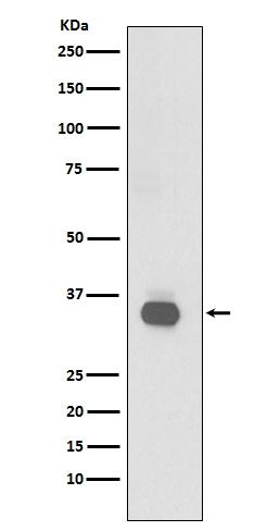 Anti-CD20 Rabbit Monoclonal Antibody