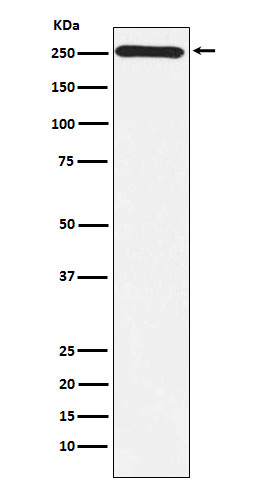 Figure 1. Western blot analysis of MYO7A using anti-MYO7A antibody (M03915).<br>Electrophoresis was performed on a 5-20% SDS-PAGE gel at 70V (Stacking gel) / 90V (Resolving gel) for 2-3 hours. The sample well of each lane was loaded with 50ug of sample under reducing conditions. <br>After Electrophoresis, proteins were transferred to a Nitrocellulose membrane at 150mA for 50-90 minutes. Blocked the membrane with 5% Non-fat Milk/ TBS for 1.5 hour at RT. The membrane was incubated with rabbit anti-MYO7A antigen affinity purified polyclonal antibody (Catalog # M03915) at 0.5 ug/mL overnight at 4°C; then washed with TBS-0.1%Tween 3 times with 5 minutes each and probed with a goat anti-Rabbit IgG IgG-HRP secondary antibody at a dilution of 1:10000 for 1.5 hour at RT. The signal is developed using an Enhanced Chemiluminescent detection (ECL) kit (Catalog # SA1022) with Tanon 5200 system. A specific band was detected for MYO7A.