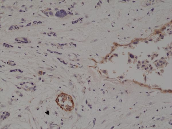 Figure 3. IHC result<br>Immunohistochemical staining of formalin fixed and paraffin embedded human breast cancer tissue section using anti-CD10 rabbit monoclonal antibody (Clone RM337) at a 1:200 dilution.