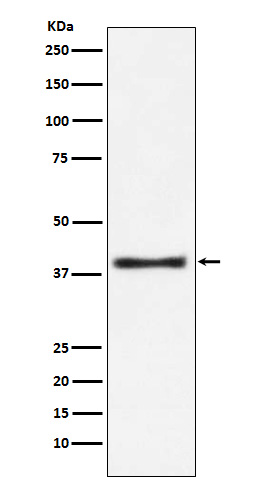 Figure 1. Western blot analysis of GOT1 using anti-GOT1 antibody (M04085).<br>Electrophoresis was performed on a 5-20% SDS-PAGE gel at 70V (Stacking gel) / 90V (Resolving gel) for 2-3 hours. The sample well of each lane was loaded with 50ug of sample under reducing conditions. <br>After Electrophoresis, proteins were transferred to a Nitrocellulose membrane at 150mA for 50-90 minutes. Blocked the membrane with 5% Non-fat Milk/ TBS for 1.5 hour at RT. The membrane was incubated with rabbit anti-GOT1 antigen affinity purified polyclonal antibody (Catalog # M04085) at 0.5 ug/mL overnight at 4°C, then washed with TBS-0.1%Tween 3 times with 5 minutes each and probed with a goat anti-Rabbit IgG IgG-HRP secondary antibody at a dilution of 1:10000 for 1.5 hour at RT. The signal is developed using an Enhanced Chemiluminescent detection (ECL) kit (Catalog # SA1022) with Tanon 5200 system. A specific band was detected for GOT1.