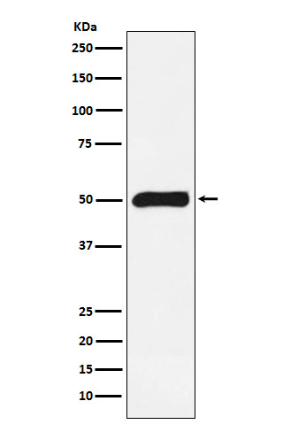 Figure 1. Western blot analysis of FKBP5 using anti-FKBP5 antibody (M04182).<br>Electrophoresis was performed on a 5-20% SDS-PAGE gel at 70V (Stacking gel) / 90V (Resolving gel) for 2-3 hours. The sample well of each lane was loaded with 50ug of sample under reducing conditions. <br>After Electrophoresis, proteins were transferred to a Nitrocellulose membrane at 150mA for 50-90 minutes. Blocked the membrane with 5% Non-fat Milk/ TBS for 1.5 hour at RT. The membrane was incubated with rabbit anti-FKBP5 antigen affinity purified polyclonal antibody (Catalog # M04182) at 0.5 ug/mL overnight at 4°C, then washed with TBS-0.1%Tween 3 times with 5 minutes each and probed with a goat anti-Rabbit IgG IgG-HRP secondary antibody at a dilution of 1:10000 for 1.5 hour at RT. The signal is developed using an Enhanced Chemiluminescent detection (ECL) kit (Catalog # SA1022) with Tanon 5200 system. A specific band was detected for FKBP5.