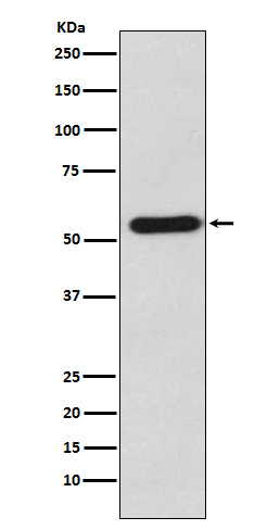 Figure 1. Western blot analysis of STAU1 using anti-STAU1 antibody (M04259) in K562 cell lysate.<br>Electrophoresis was performed on a 5-20% SDS-PAGE gel at 70V (Stacking gel) / 90V (Resolving gel) for 2-3 hours. The sample well of each lane was loaded with 50ug of sample under reducing conditions. <br>After Electrophoresis, proteins were transferred to a Nitrocellulose membrane at 150mA for 50-90 minutes. Blocked the membrane with 5% Non-fat Milk/ TBS for 1.5 hour at RT. The membrane was incubated with rabbit anti-STAU1 antigen affinity purified polyclonal antibody (Catalog # M04259) at 0.5 ug/mL overnight at 4°C, then washed with TBS-0.1%Tween 3 times with 5 minutes each and probed with a goat anti-Rabbit IgG IgG-HRP secondary antibody at a dilution of 1:10000 for 1.5 hour at RT. The signal is developed using an Enhanced Chemiluminescent detection (ECL) kit (Catalog # SA1022) with Tanon 5200 system. A specific band was detected for STAU1.