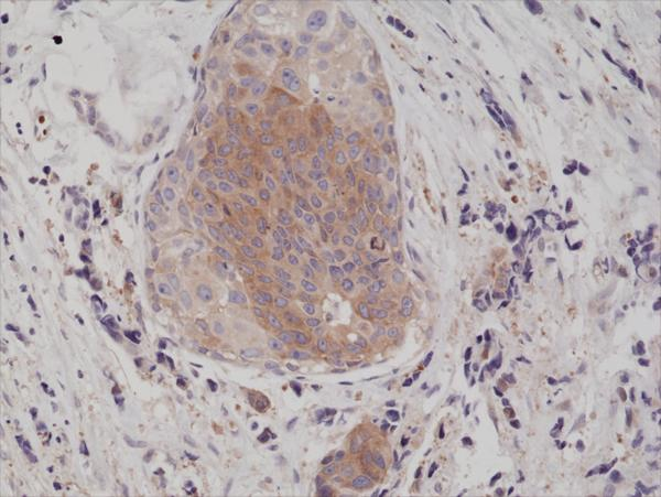 Figure 2. IHC result<br>Immunohistochemical staining of formalin fixed and paraffin embedded human breast cancer tissue section using anti-phospho-eIF-2? (Ser51) rabbit monoclonal antibody (clone RM298) at a 1:200 dilution.