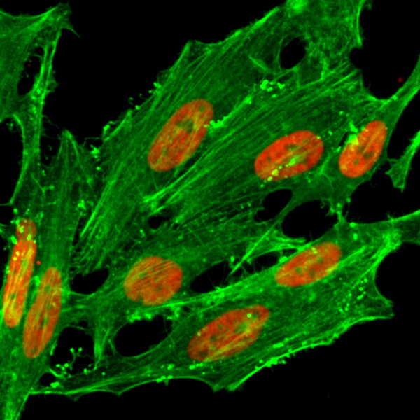 Figure 3. ICC result<br>Immunocytochemical staining of HeLa cells treated with sodium butyrate, using anti-Acetyl-Histone H2A.Z (Lys7) Rabbit Monoclonal Antibody (clone RM222) (red). Actin filaments have been labeled with fluorescein phalloidin (green).