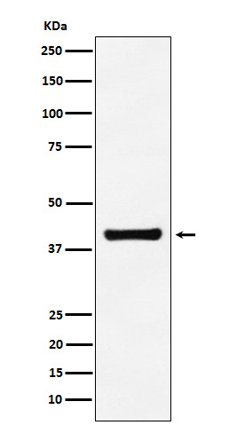 Figure 1. Western blot analysis of Aldolase using anti-Aldolase antibody in A549 cell lysate (M05022).<br>Electrophoresis was performed on a 5-20% SDS-PAGE gel at 70V (Stacking gel) / 90V (Resolving gel) for 2-3 hours. The sample well of each lane was loaded with 50ug of sample under reducing conditions. <br>After Electrophoresis, proteins were transferred to a Nitrocellulose membrane at 150mA for 50-90 minutes. Blocked the membrane with 5% Non-fat Milk/ TBS for 1.5 hour at RT. The membrane was incubated with rabbit anti-Aldolase antigen affinity purified polyclonal antibody (Catalog # M05022) at 0.5 ug/mL overnight at 4°C, then washed with TBS-0.1%Tween 3 times with 5 minutes each and probed with a goat anti-Rabbit IgG IgG-HRP secondary antibody at a dilution of 1:10000 for 1.5 hour at RT. The signal is developed using an Enhanced Chemiluminescent detection (ECL) kit (Catalog # SA1022) with Tanon 5200 system. A specific band was detected for Aldolase.