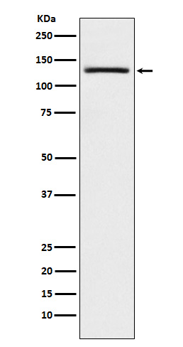 Figure 1. Western blot analysis of USP28 using anti-USP28 antibody (M05040).<br>Electrophoresis was performed on a 5-20% SDS-PAGE gel at 70V (Stacking gel) / 90V (Resolving gel) for 2-3 hours. The sample well of each lane was loaded with 50ug of sample under reducing conditions. <br>After Electrophoresis, proteins were transferred to a Nitrocellulose membrane at 150mA for 50-90 minutes. Blocked the membrane with 5% Non-fat Milk/ TBS for 1.5 hour at RT. The membrane was incubated with rabbit anti-USP28 antigen affinity purified polyclonal antibody (Catalog # M05040) at 0.5 ug/mL overnight at 4°C, then washed with TBS-0.1%Tween 3 times with 5 minutes each and probed with a goat anti-Rabbit IgG IgG-HRP secondary antibody at a dilution of 1:10000 for 1.5 hour at RT. The signal is developed using an Enhanced Chemiluminescent detection (ECL) kit (Catalog # SA1022) with Tanon 5200 system. A specific band was detected for USP28.
