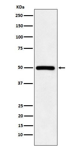 Figure 1. Western blot analysis of KMT5A using anti-KMT5A antibody (M05349).<br>Electrophoresis was performed on a 5-20% SDS-PAGE gel at 70V (Stacking gel) / 90V (Resolving gel) for 2-3 hours. The sample well of each lane was loaded with 50ug of sample under reducing conditions. <br>After Electrophoresis, proteins were transferred to a Nitrocellulose membrane at 150mA for 50-90 minutes. Blocked the membrane with 5% Non-fat Milk/ TBS for 1.5 hour at RT. The membrane was incubated with rabbit anti-KMT5A antigen affinity purified polyclonal antibody (Catalog # M05349) at 0.5 ug/mL overnight at 4°C, then washed with TBS-0.1%Tween 3 times with 5 minutes each and probed with a goat anti-Rabbit IgG IgG-HRP secondary antibody at a dilution of 1:10000 for 1.5 hour at RT. The signal is developed using an Enhanced Chemiluminescent detection (ECL) kit (Catalog # SA1022) with Tanon 5200 system. A specific band was detected for KMT5A.