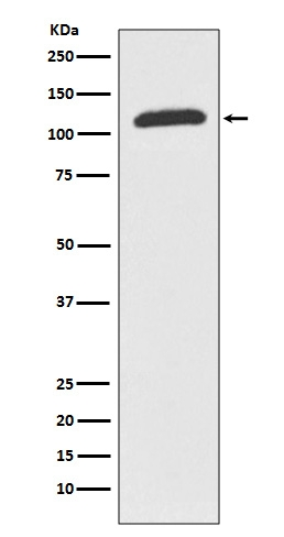 Western blot analysis of ABCF1 expression in K562 cell lysate (M05358). <br>Electrophoresis was performed on a 5-20% SDS-PAGE gel at 70V (Stacking gel) / 90V (Resolving gel) for 2-3 hours. The sample well of each lane was loaded with 50ug of sample under reducing conditions. <br> After Electrophoresis, proteins were transferred to a Nitrocellulose membrane at 150mA for 50-90 minutes. Blocked the membrane with 5% Non-fat Milk/ TBS for 1.5 hour at RT. The membrane was incubated with rabbit anti-ABCF1 monoclonal antibody (Catalog # M05358)  overnight at 4℃, then washed with TBS-0.1%Tween 3 times with 5 minutes each and probed with a goat anti-rabbit IgG-HRP secondary antibody at a dilution of 1:10000 for 1.5 hour at RT. The signal is developed using an Enhanced Chemiluminescent detection (ECL) kit (Catalog # EK1002) with Tanon 5200 system. A specific band was detected for ABCF1