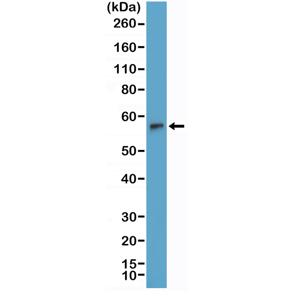 Figure 1. Western Blotting result<br>Western Blot of Jurkat cells lysate using anti-TdT rabbit monoclonal antibody (Clone RM379) at a 1:2000 dilution.